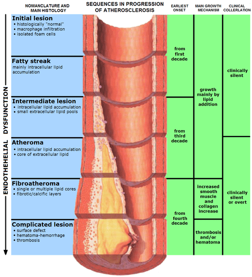 lymphedema and atherosclerosis: progression of atherosclerosis