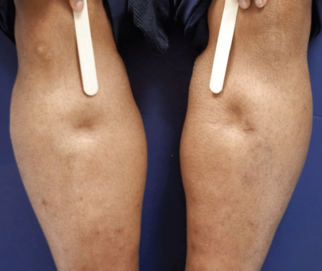 Legs showing pitting edema, an uncommon symptom of lipedema