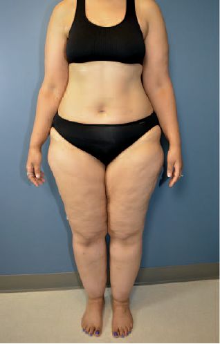 Woman with lipedema showing ankle collar of fat