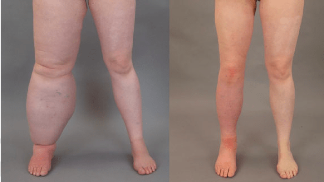 Patient photograph showing results of liposuction for lymphedema of the leg