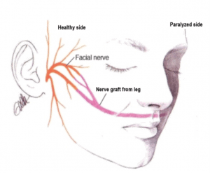 Facial nerve graft surgery