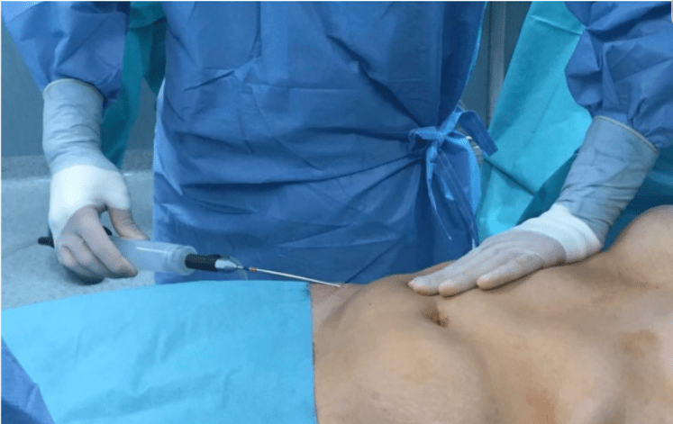 Liposuction being performed on a patient