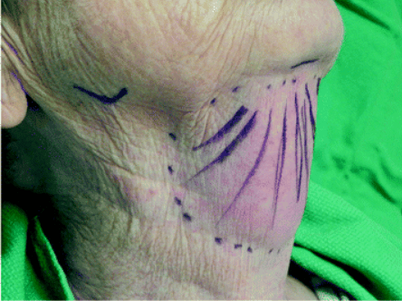 Submental liposuction for head and neck lymphedema