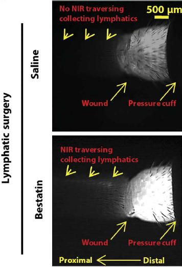 Ubenimex (bestatin) can treat lymphedema in mice