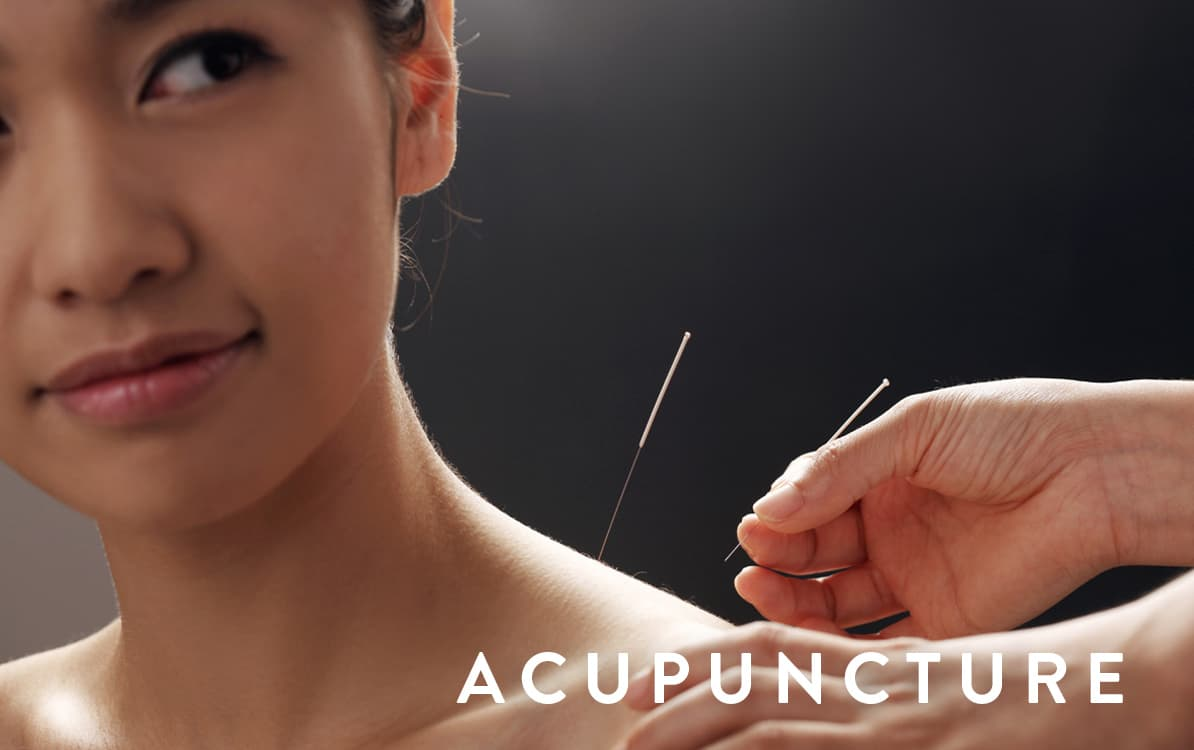 Acupuncture being provided by an acupuncturist