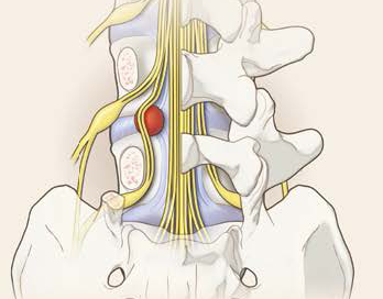Herniation induced sciatica